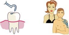 Les-soins-dentaires
